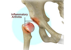 Inflammatory Arthritis of the Hip